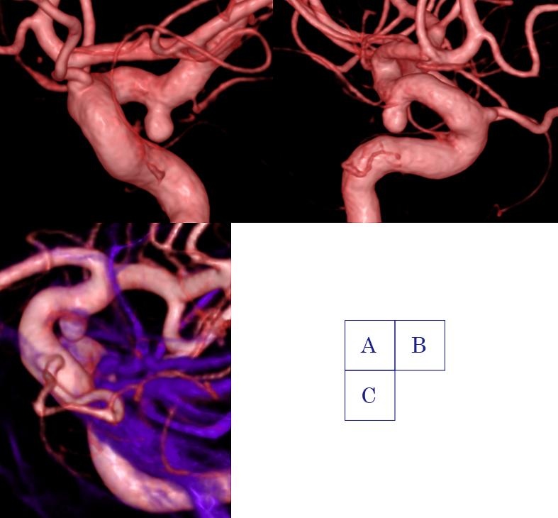 図2:動脈瘤の検査(脳血管撮影)