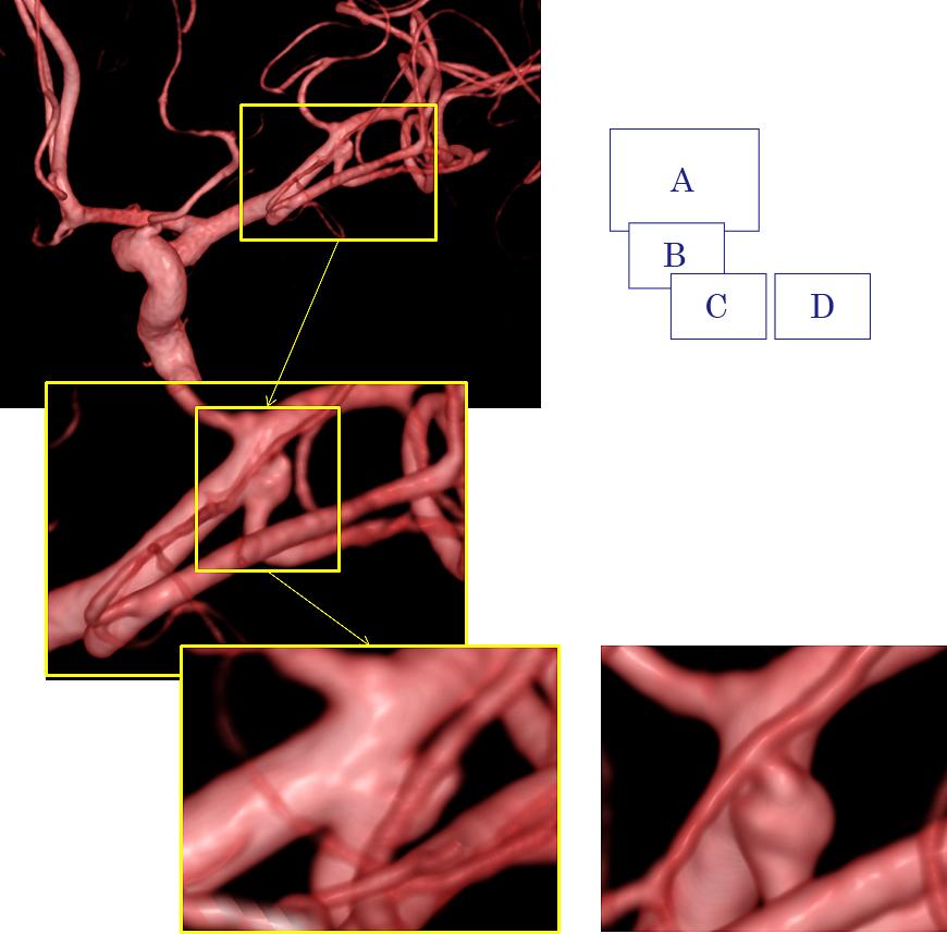 図3:動脈瘤の検査(脳血管撮影)