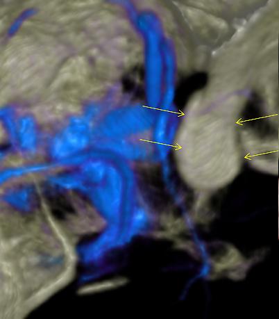 図4:動脈瘤の検査(脳血管撮影)