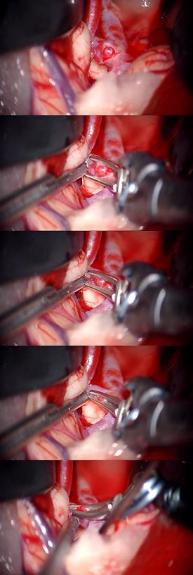 図5:1つ目の動脈瘤処置