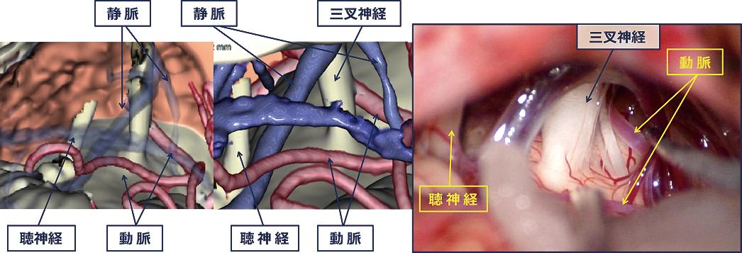 図2:三叉神経痛の術中画像(右)と術前検査から得られた術中予想画像(左)