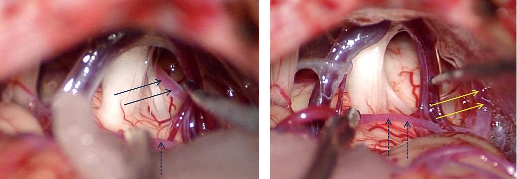 図3:三叉神経痛の術中画像(左は術前、右は術後)