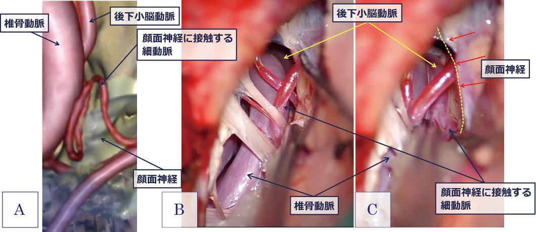 図2:顔面けいれんの術前予想画像(A)と術中画像(B, C)