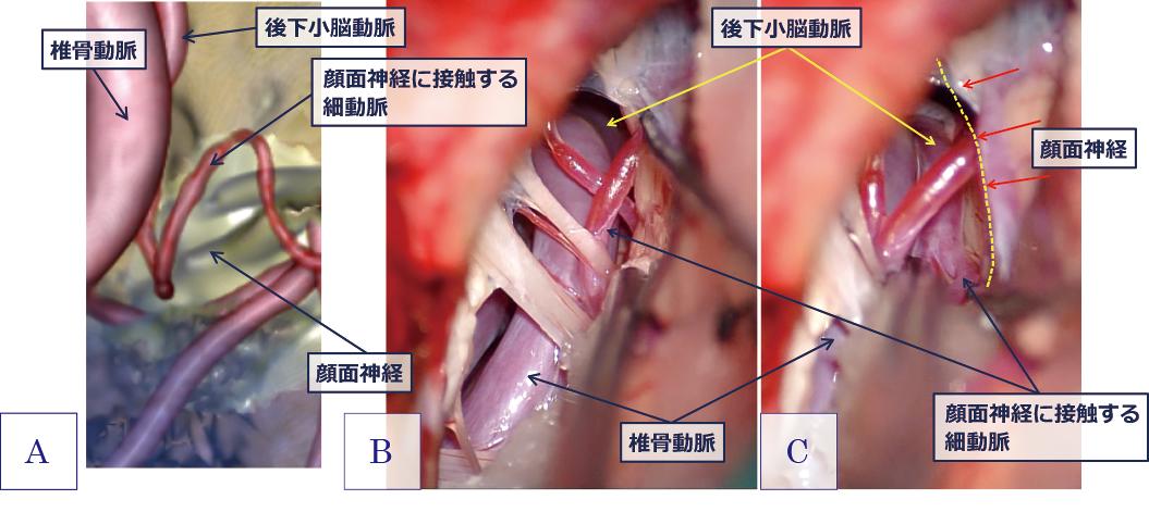 図3:顔面けいれんの術前予想画像(A)と術中画像(B, C) その2