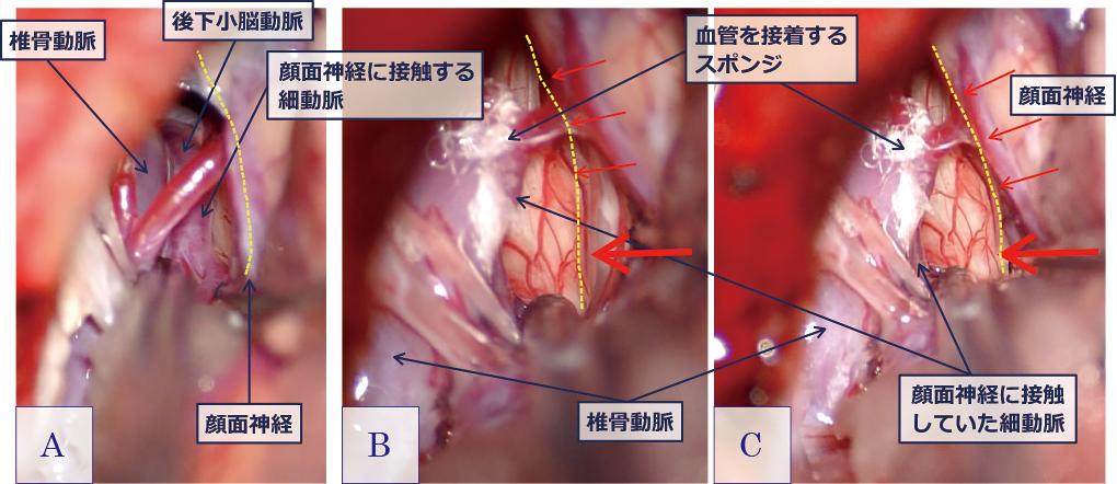図4:原因血管移動前(A)と移動後の画像(B, C)