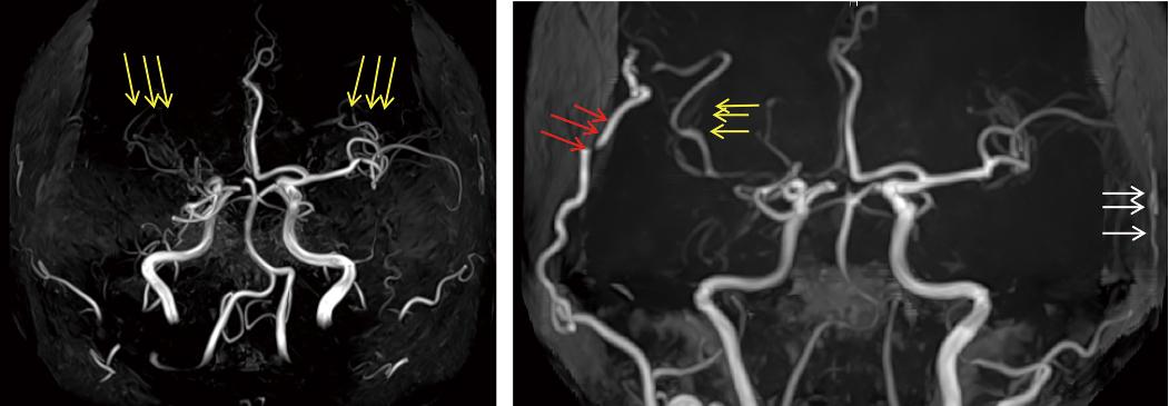 図4:STA-MCAバイパスを行った患者さんの術前(左)、術後2年(右)のMRA画像