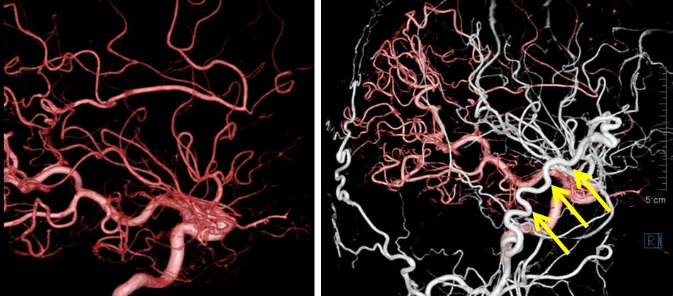 図5:STA-MCAバイパスを行った患者さんの術前(左)、術後2年(右)の3D画像