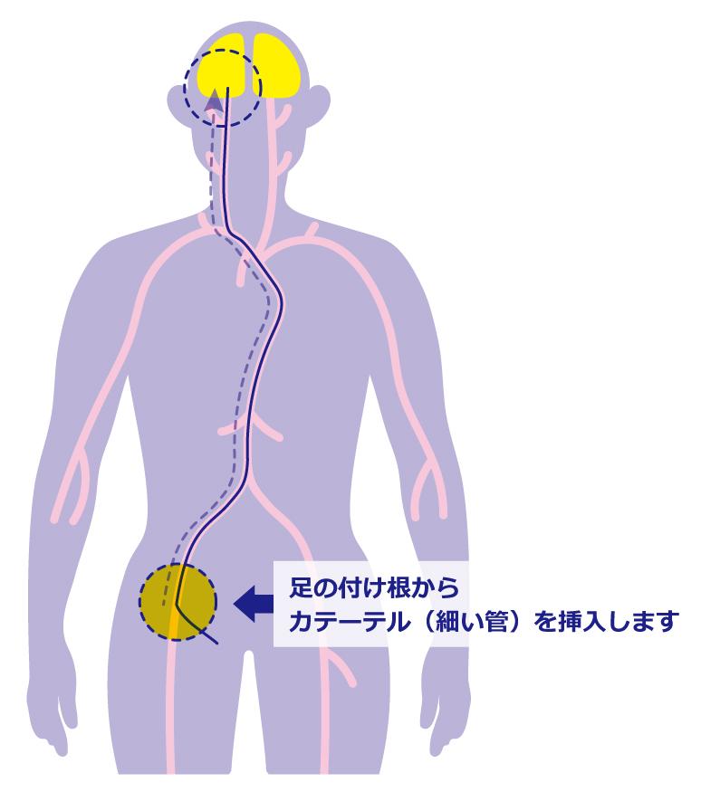 図2:血管内治療