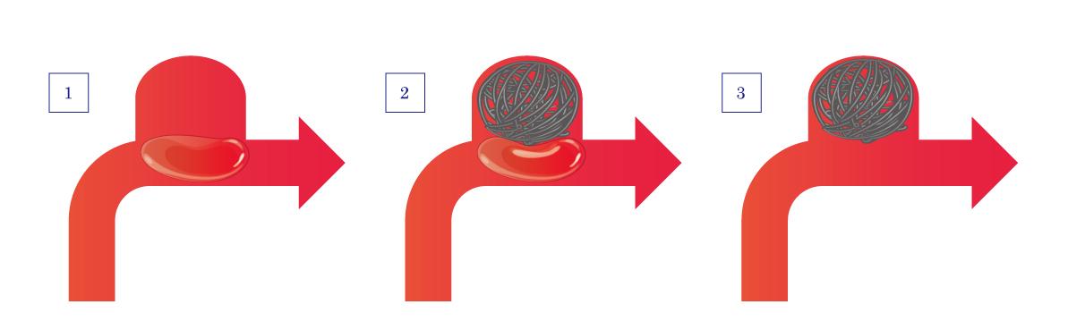 図13:瘤頚部の広いケース 2