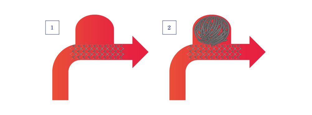図14:瘤頚部の広いケース 3