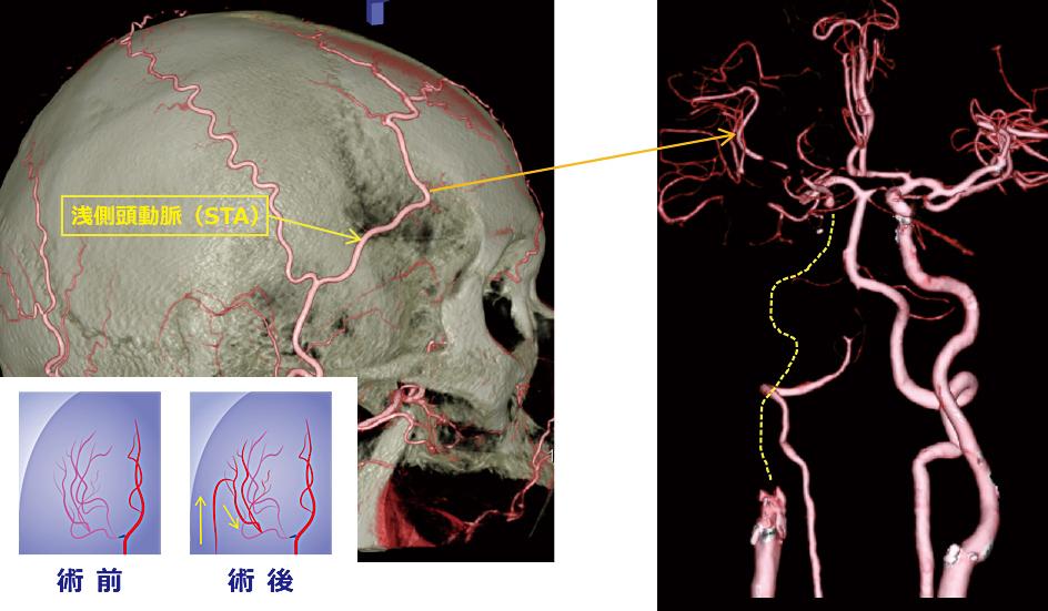 図2: もっとも多く行われるバイパス手術(STA-MCA吻合術)
