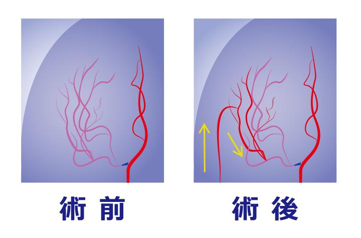 図3:バイパス手術中画像