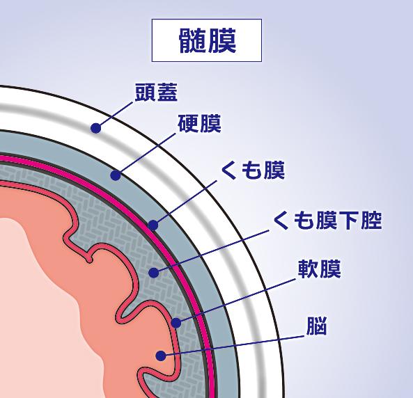 頭部外傷 | 対応疾患 | 流山中央病院 脳神経外科ホームページです。「日本脳神経血管内治療学会研修施設」 認定病院。脳動脈瘤、クモ膜下 出血、脳出血、脳梗塞などの血管障害だけでなく、脳動静脈奇形や硬膜動静脈瘻といった、珍しい疾患もカバーしています。